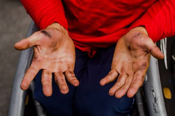 Ryan Chalmer's hands after a hard day's push